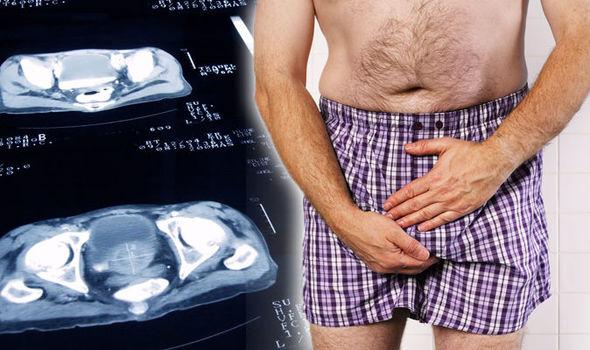 Первые симптомы аденокарциномы предстательной железы