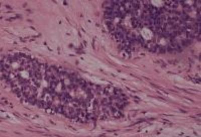 Клетки фиброаденомы молочной железы под микроскопом