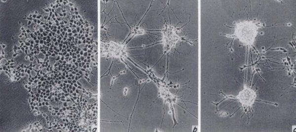 Морфологические изменения клеток мозга при нейробластоме