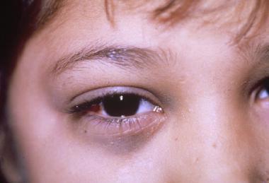 Симптом нейробластомы в области глаз
