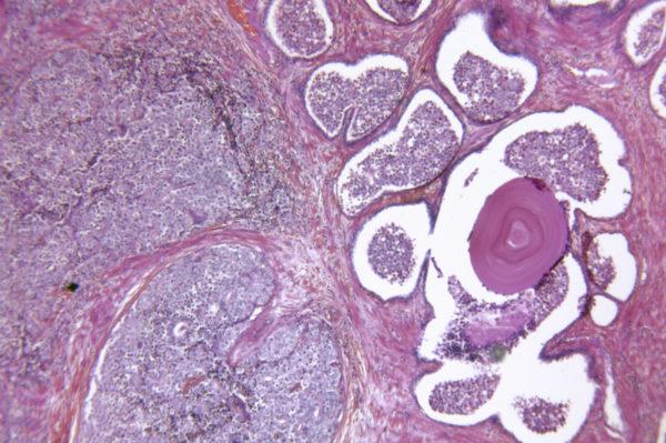 Видоизменённые раком клетки предстательной железы