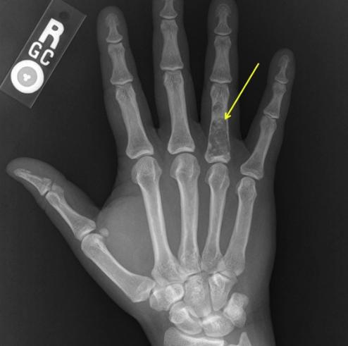 Хондрома на костях пальцев