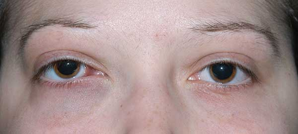 plica semilunaris swollen eye allergies - 600×270