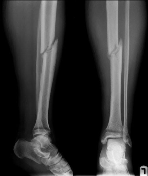 Перелом кости на рентгене