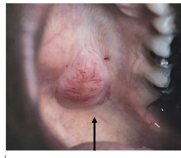 Полиморфная низкодифференцированная аденокарцинома