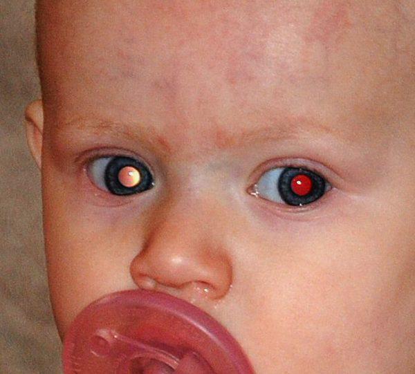 Ретинобластома глаза
