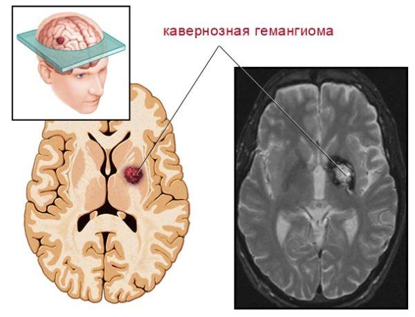 Кавернозная гемангиома в мозге