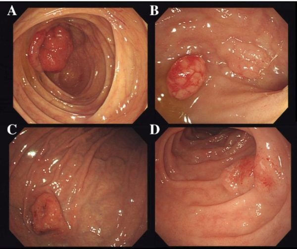 Лимфома в желудке