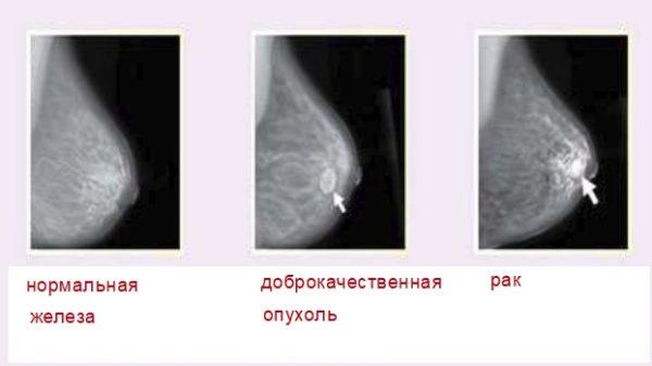 Аденома молочной железы и отличие от рака