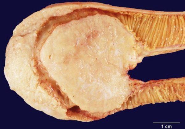 Формы лимфомы в кишечнике