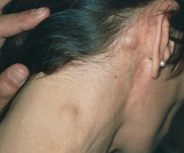 Опухоли в лимфатических узлах