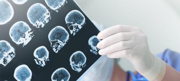 Изучение гипофиза на рентгенограмме