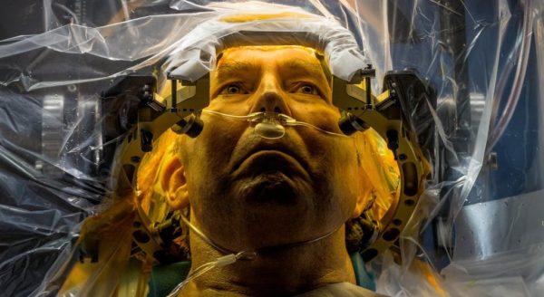 Операция на мозге