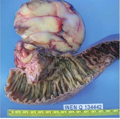Повреждённая липоматозом поджелудочная железа