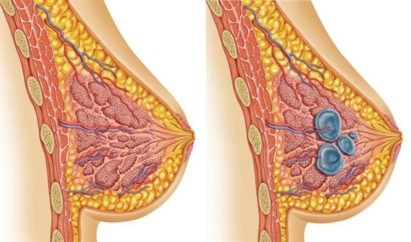 Смешанная мастопатия с преобладанием железистого компонента 1