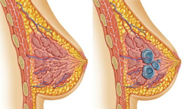 Схема мастопатии в груди