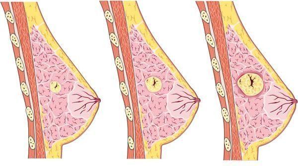 Последствия нелеченной мастопатии