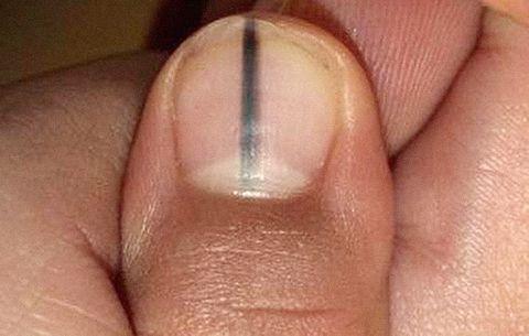 Тёмная полоса на ногтевой пластине