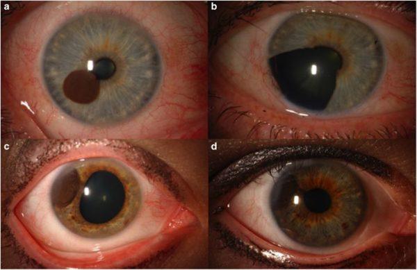 Виды меланом глаза