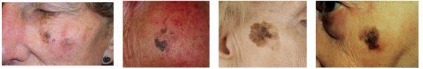 Разновидности лентиго-меланомы