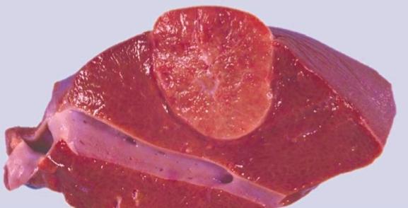 Аденома печени в разрезе