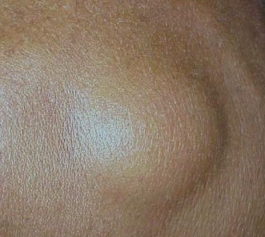 Лимфома под кожей