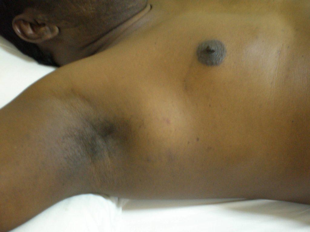 Лимфома лечение прогноз