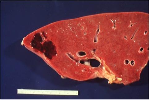 Кавернозная гемангиома в печени