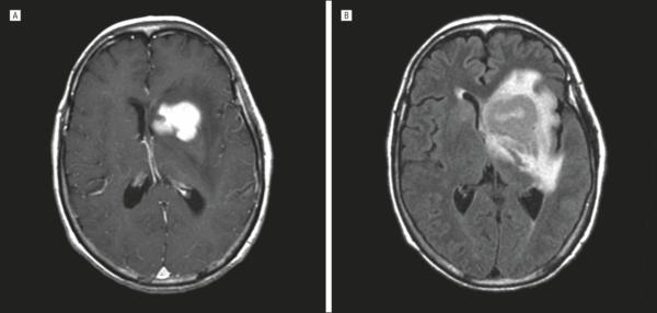 Лимфома мозга на МРТ