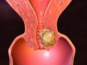 Рак эндометрия матки симптомы