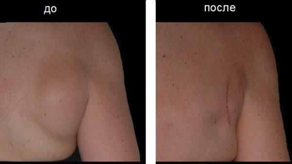 Липома на спине до и после удаления