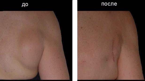 Опасно ли вырезать жировик на спине