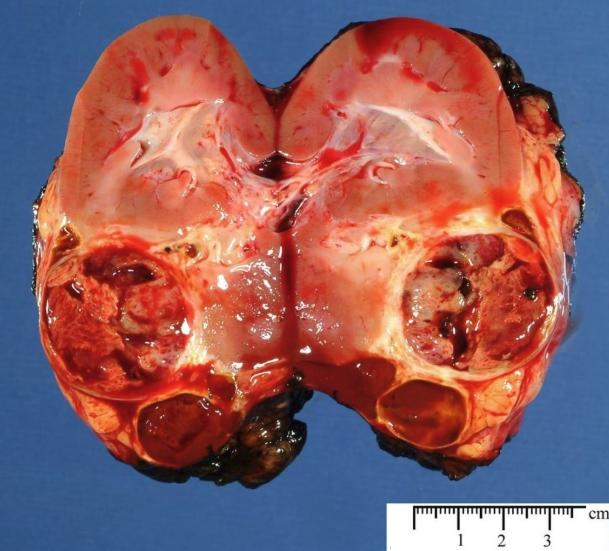 Рак почки - классификация, морфология, иммуногистохимия, генетика