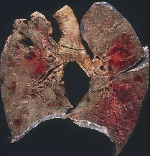 Умеренно дифференцированный плоскоклеточный рак — Твой гинеколог