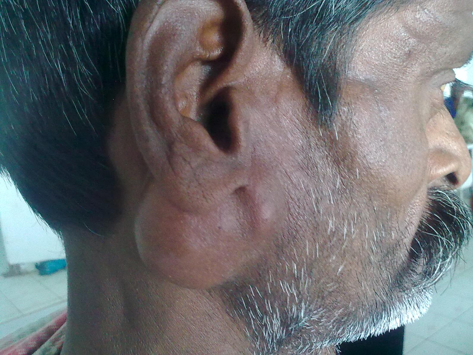 Как лечат аденому слюнной железы и каковы прогнозы