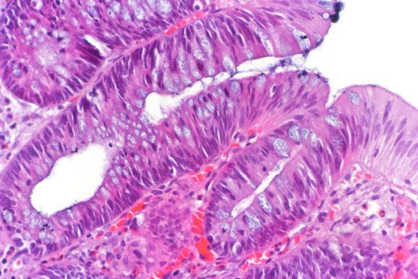 Гистология каналикулярной аденомы