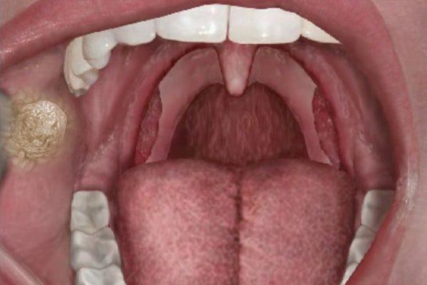 Аденома слюнной железы во рту пациента