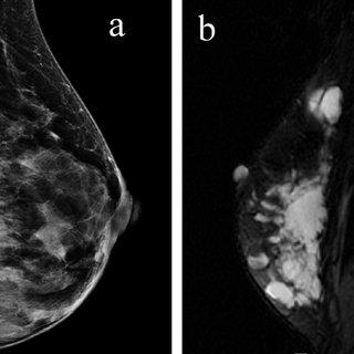 Маммографическое исследование молочных желёз с ангиосаркомой