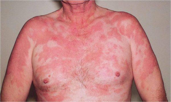 Бляшечная форма лимфомы