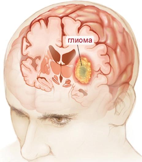 Глиома в головном мозге