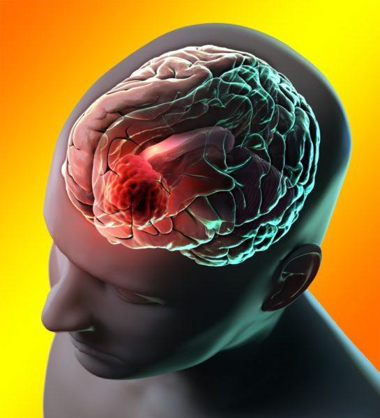 Схема расположения менингиомы