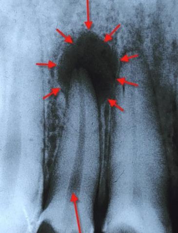 Апикальная гранулёма на зубе