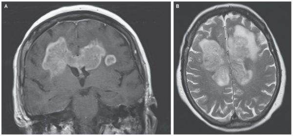 Глиома в форме бабочки в головном мозге