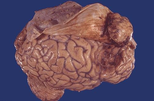 Менингиома на человеческом мозге