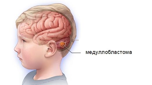Медуллобластома в головном мозге