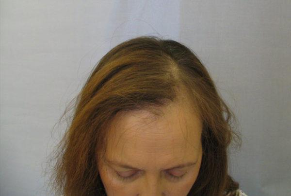 Выпадение волос после лучевой терапии