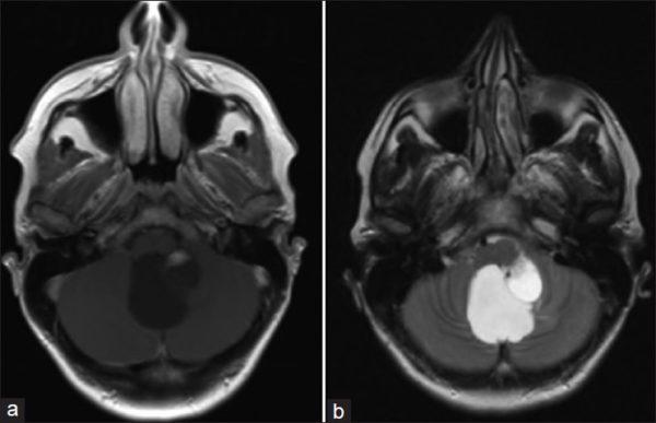 Гемангиобластома мозжечка