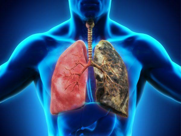 Рак лёгких