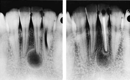 Гранулёма зуба на рентгене