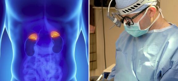 Рак надпочечников требует операции